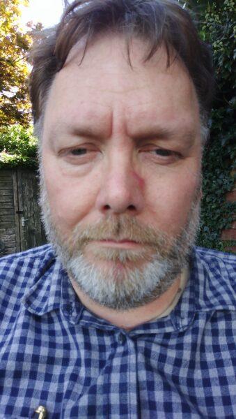 Dafydd Pritchard - Poetry in a Celtic Language Award